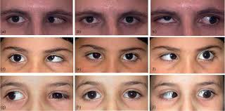 Duane-Radial Ray Syndrome (DRRS or Okihiro syndrome; MIM #607323)