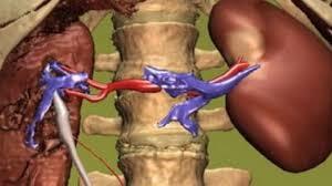 infectie rinichi simptome