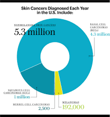 Skin Cancer Chart Early Detection Starts With You The Skin Cancer Foundation