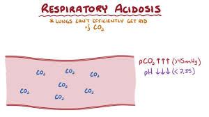Respiratory Acidosis Endocrine And Metabolic Disorders