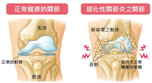 「退化性關節炎」的圖片搜尋結果