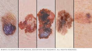 Slide Show Melanoma Pictures To Help Identify Skin Cancer