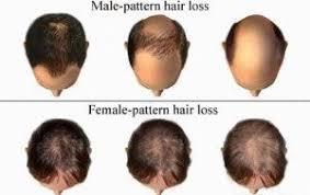 Female Pattern Hair Loss Beauteous Female Pattern Baldness Archives DK International