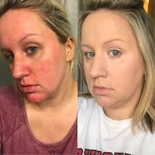 this redditor used it cosmetics s bye bye redness and the before and after photos are mind ing