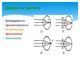 Реферат По физике Тема глаз оптическая система vinyl fest ru Глаз дефекты зрения реферат