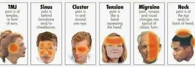 cluster headache location chart different headaches different headaches types of