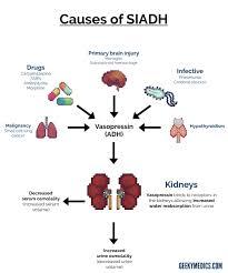 Siadh Vs Diabetes Insipidus Chart Siadh Geeky Medics
