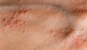 pimple on the hand causes and treatment