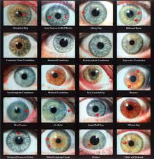 Iridology Diagnosis Chart 41 Rigorous Iris Diagnosis Chart