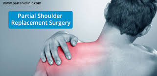partial shoulder replacement joint