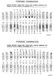 Dental Charting Symbols List Primary Teeth Dental Chart Www Bedowntowndaytona Com