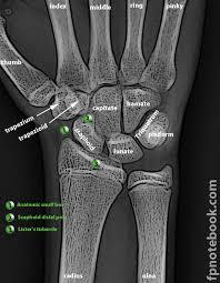 hand x ray diagram hand database wiring diagram images hand bone anatomy x ray hand skeleton x ray human anatomy diagram
