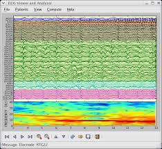 Screenshots Matplotlib 1 3 X Documentation