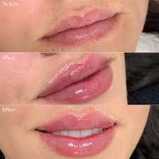 swelling last after lip filler