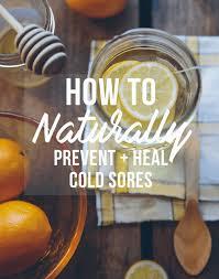 treat cold sores naturally