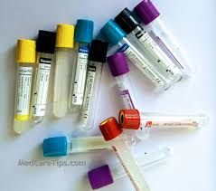 Vacutainer And Their Use In Blood Sampling Medcaretips Com