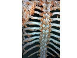 肋骨 骨折 治療