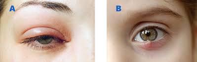 Doctors Note For Pink Eye Styes Atlanta Chalazia Marietta Eye Consultants Of Atlanta