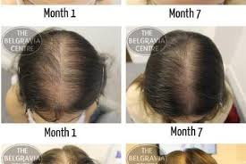 Male Or Female Pattern Baldness Treatments Enchanting Female Pattern Baldness Treatment TechEyeTech
