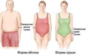 Избыточный вес как фактор риска развития сердечно сосудистых  Жир может равномерно распределяться по всему телу а может преимущественно локализоваться на животе вокруг талии яблоковидное ожирение или