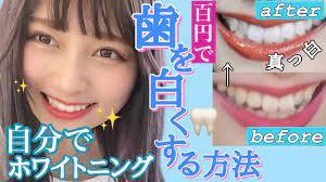 歯 を 白く する 方法