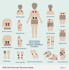 Tens Machine Pad Placement Chart Electrode Placement Chart For Tens Unit Www