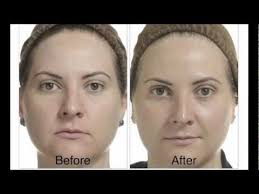 when can you wear makeup after a chemical l alpha hydroxy acids