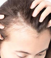 Male Or Female Pattern Baldness Treatments Enchanting Top 48 Home Remedies To Cure Baldness Effectively