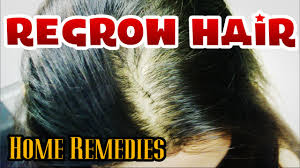 Regrow Hair Naturally How To Cure Baldness For Men Women Youtube