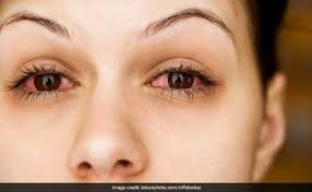 Allergic Conjunctivitis On The Rise: 6 Best Home Remedies