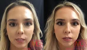lip augmentation juvederm volbella nyc