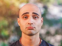 hair loss why it s happening to