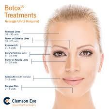 Botox Facial Diagram Wiring Diagrams