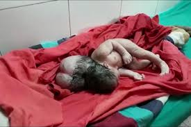 Baby girl 'born with <b>THREE heads</b>' stuns doctors in India