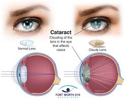 Cataract Surgery Procedure Safety Recovery And Effects