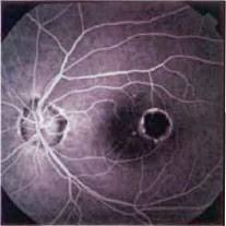 Presumed Ocular Histoplasmosis Syndrome | Retina Vitreous Resource ...