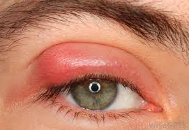 symptoms of a chlamydia eye infection