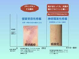 帯状 疱疹 自然 治癒