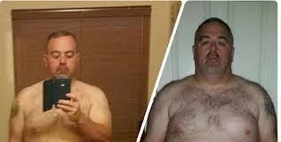 Mens Weight Loss Surgery Success Stories Bmi Of Texas