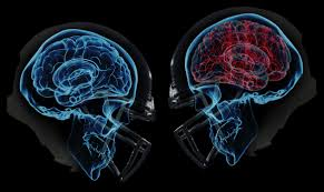 Concussions and urgency of new safety rules