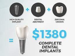cost of dental implants atlantic