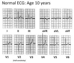 Ecg Chart Examples Paediatric Ecg Interpretation Litfl Medical Blog Ecg