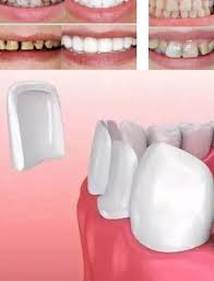 top 10 <b>dr</b> dental near me and get free shipping - a742