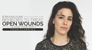 8 Proven Home Remedies To Treat Open Wounds And Save Your Skin From ...