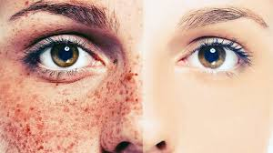 Image result for skin damage protection