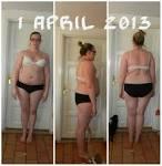 Gastric bypass före och efter bilder