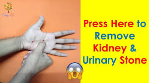 2 Acupressure Point For Kidney Stone Urinary Bladder Stone