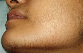 remove unwanted hair permanently