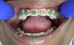metal ceramic and incognito braces