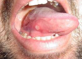 canker sore treatments causes and